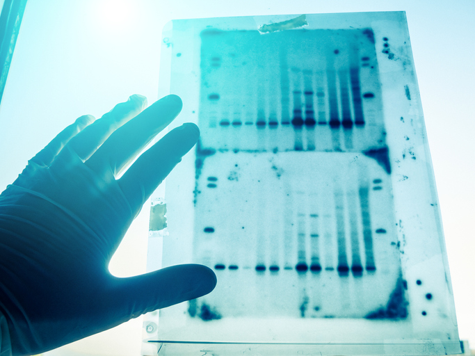 Understanding the Importance and Intricacies of the Application of Western Blot in Medical Tests